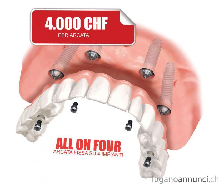 Clinica dentale low cost a Novara città - Italia ClinicadentalelowcostaNovaracittItalia-5b966aeb8b832.jpg
